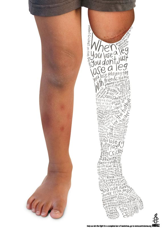 Amnesty International: Leg